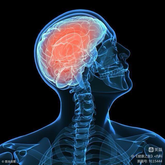 脑梗祸根已找到,医生劝告:常吃3种食物的人,最好去查一下(图2)